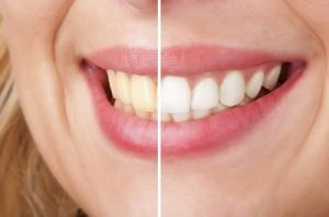 Teeth Whitening Philadelphia