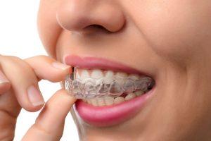 Philadelphia Invisalign; Philadelphia Dentist; Philadelphia Orthodontist; Philadelphia Orthodontics