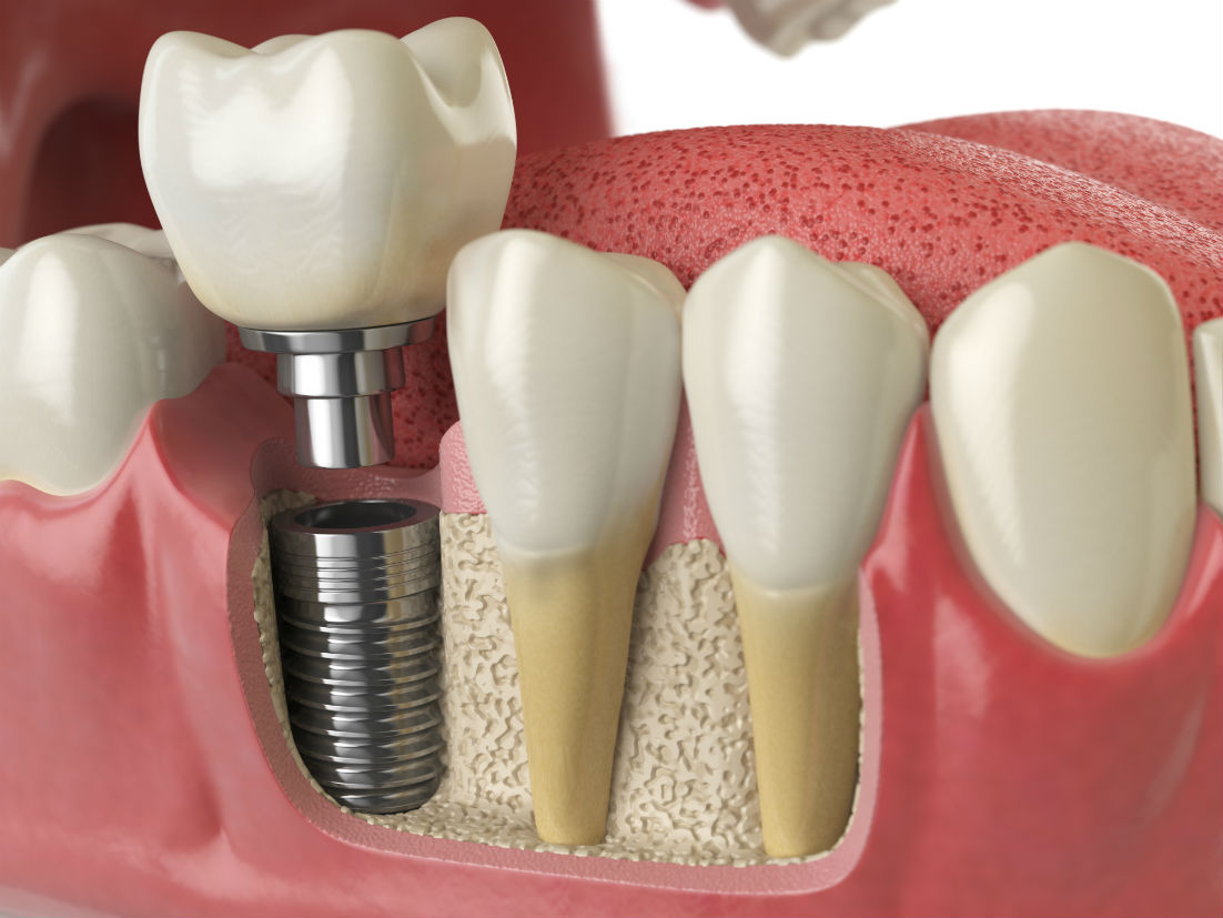 Dental Implants Philadelphia