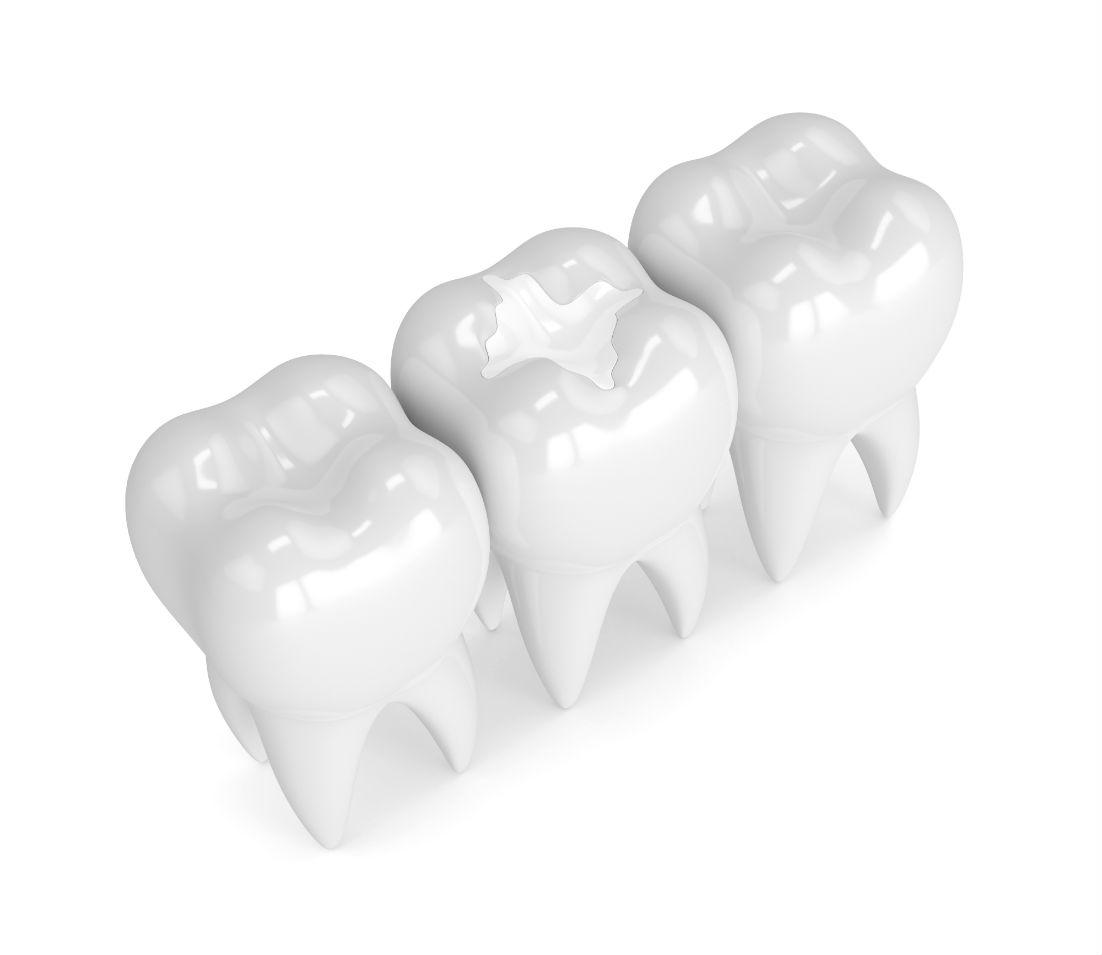 Dental Sealants Philadelphia PA